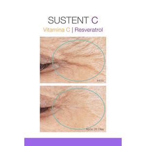 Sustent-C-